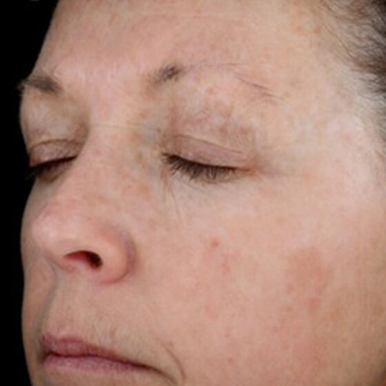After-Elite-Plus-3 hyperpigmentation (1)