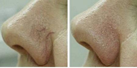 Feb nose 3