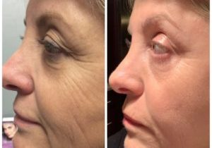 before and after laser rejuvination full face