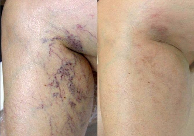 laser vein before and after