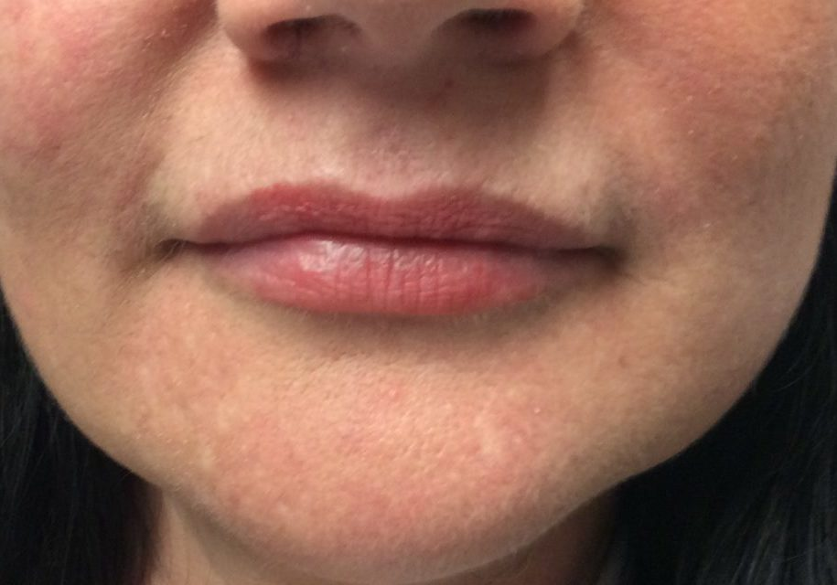 lips after fillers