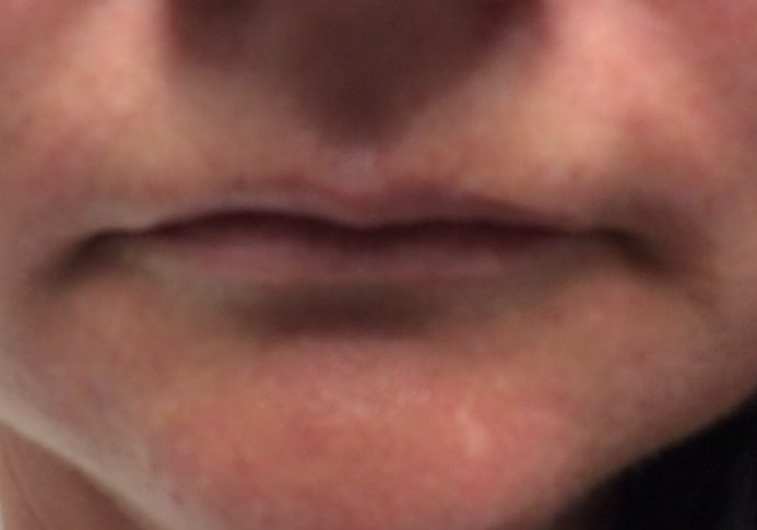 lips before fillers